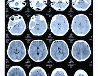 Brain CT
