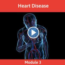 Module 3 - Heart Disease